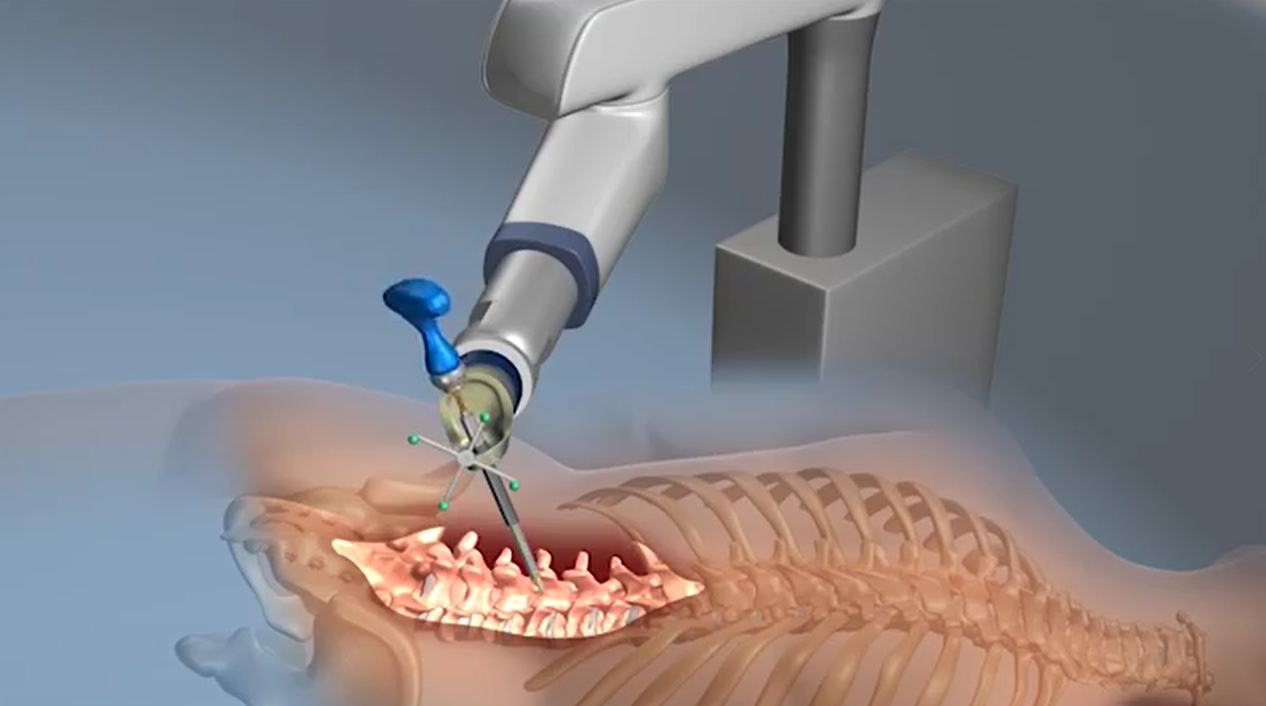 【医疗动画】3D动画/动画科普/手术动画/三维动画/mg动画