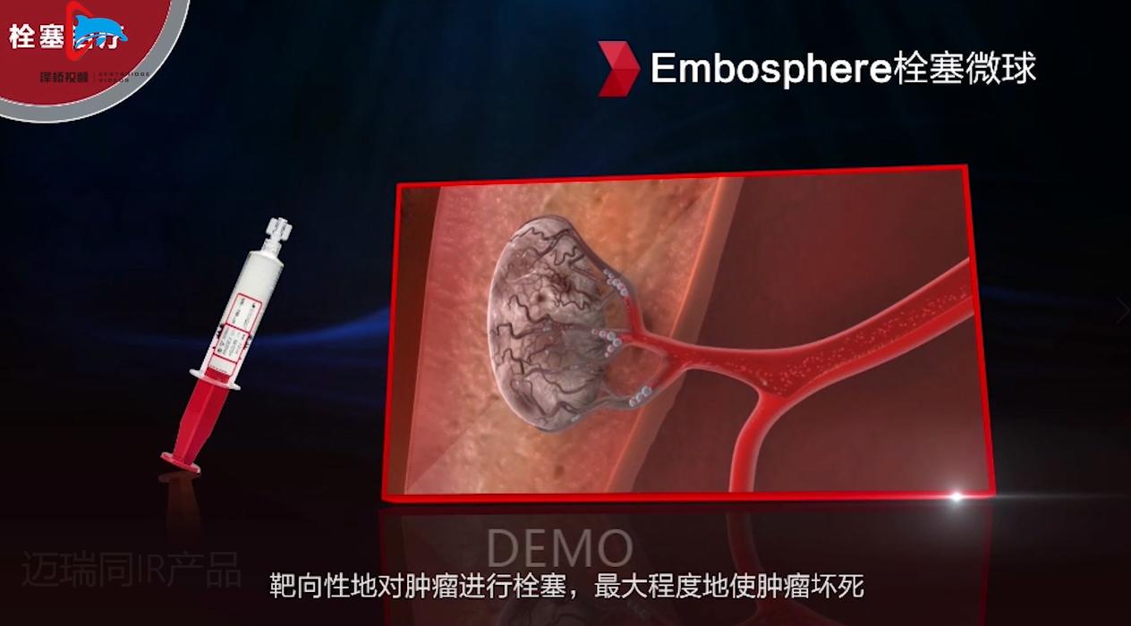 【医疗器械】3D建模/营销视频/器械动画/器械原理/宣传视频